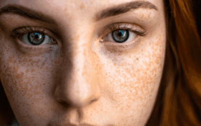 Bestrijd pigmentvlekken effectief met arganolie
