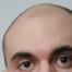 Hoe kun je arganolie gebruiken na een haartransplantatie?